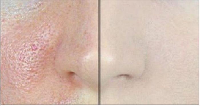 É muito desagradável um rosto com poros enormes.Quem sofre com esses poros visíveis procura eliminá-los a todo custo, normalmente com cremes industrializados.No entanto, certamente essas não são as opções mais saudáveis, muito menos as mais baratas.