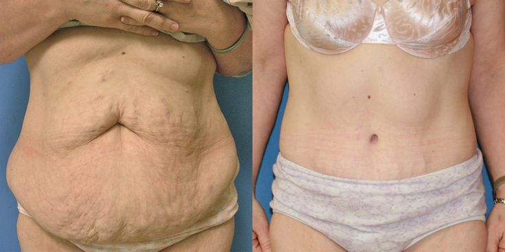 Before_and_After_Tummy_Tuck_Abdominoplasty
