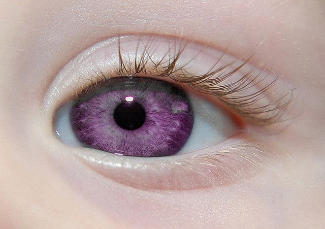 "Alexandria's Genesis, also known as ""violet eyes"" (a mutation). When someone is born with Alexandria's Genesis, his eyes are blue or gray at birth.After six months, the eyes begin to change their original color to purple, and it lasts six months. During puberty, the color deepens to dark purple, a purple color, a royal purple, or blue-violet and remains so. It does not affect a person's vision. Women that are born with this genetic mutation do not menstruate, but are fully fertile. Win win."