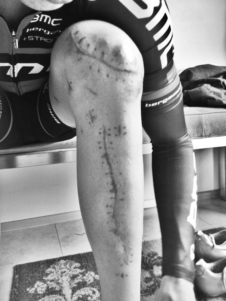 greg erwin�s photo of taylor phinney and his scars