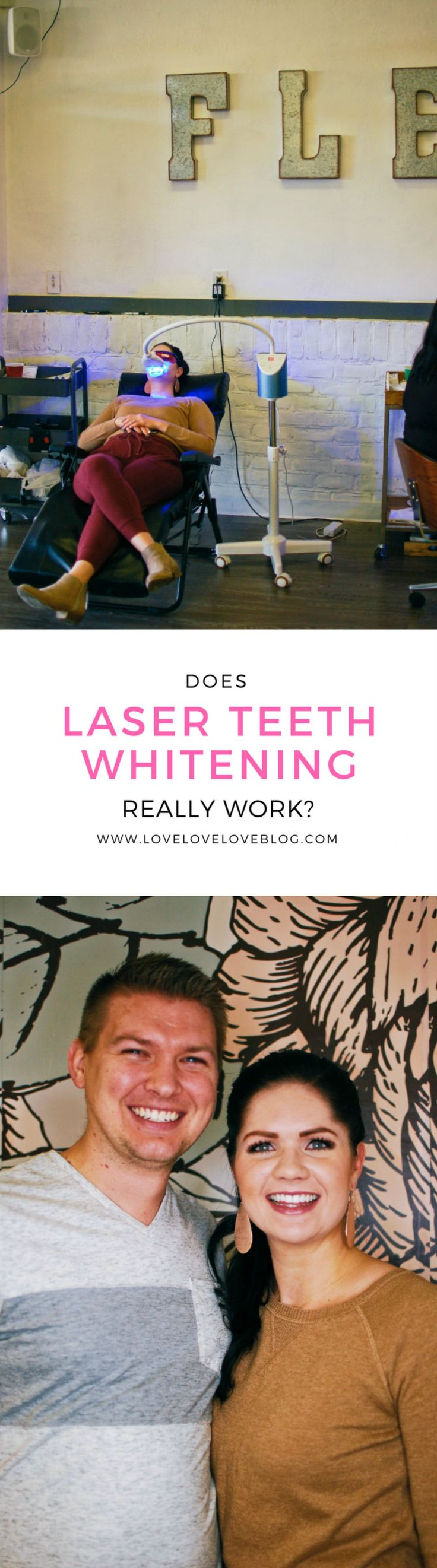 Teeth whitening | laser teeth whitening | beauty