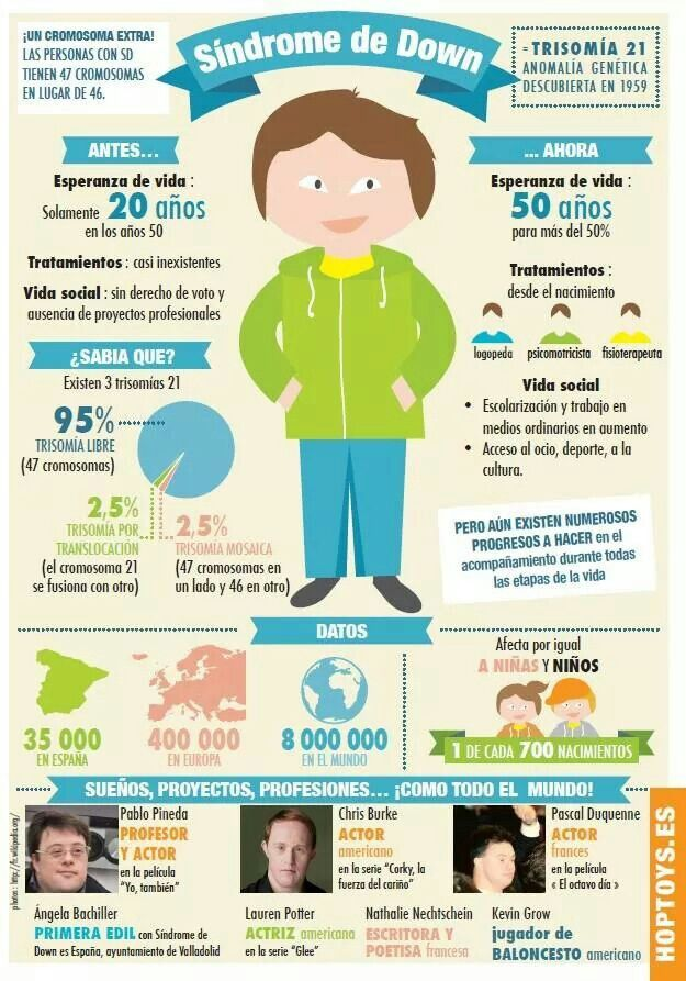 Down syndrome facts                                                       …