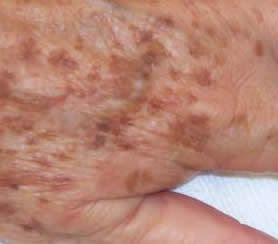 What to do about liver spots (age spots) - Liver Doctor