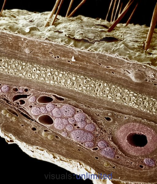 Skin cross-section, showing the epidermis, dermis, perichondrium, elastic cartilage, a myelinated nerve fiber, and a muscular artery.  Colorised SEM X160.