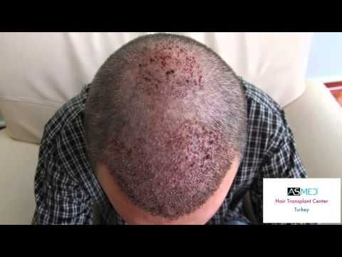 Asmed FUE Hair Transplant www.hairtransplantcenter-turkey.com Turkey Istanbul 2400 Grafts -  How To Stop Hair Loss And Regrow It The Natural Way! CLICK HERE! #hair #hairloss #hairlosswomen #hairtreatment hair loss hair transplant cost hair loss treatment hair transplant toronto hair restoration alopecia hair transplant london hair implants hair restoration cost hair replacement  - #HairLoss
