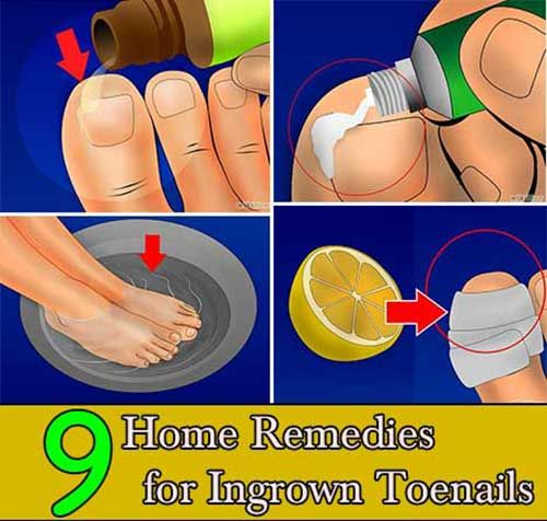 9 Home Remedies for Ingrown Toenails 9 Home Remedies for Ingrown Toenails If you ever had one, you know how uncomfortable and painful ingrown toenails can be. This fairly common condition, med