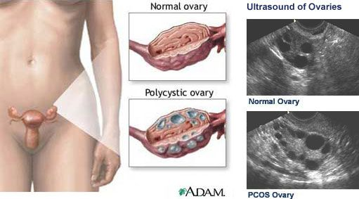 Facts on PCOS (Polycystic Ovarian Syndrome). Tips on dealing with it