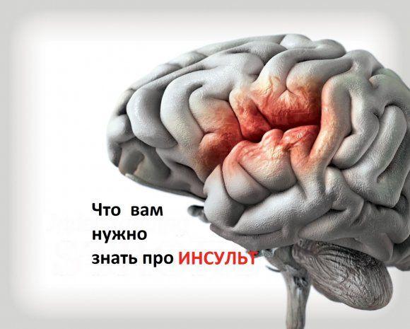 Инсульт головного мозга: 10 фактов, которые вы должны знать