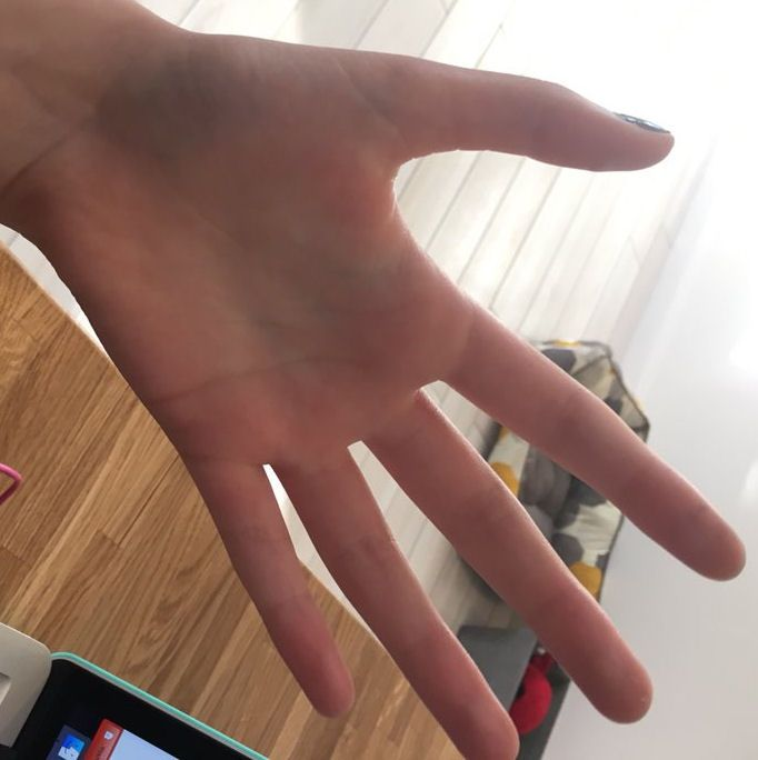 8 best hands images on Pinterest   Ehlers danlos syndrome, Marfan ...