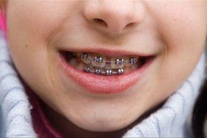 tipos de ortodoncia infantil