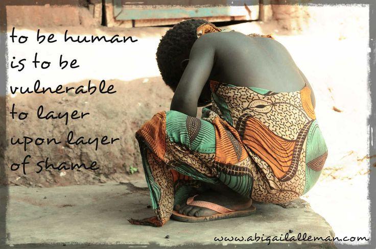 Abigail Alleman : On Vulnerability, Shame and Bipolar Disorder