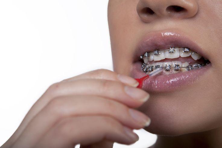 ustaw swoje zęby w szeregu ;-) #ortodoncja_Warszawa #aparat_staly #ortodonta #waszawa #dentysta #stomatolog #aparat_ruchomy #zdrowie #usmiech