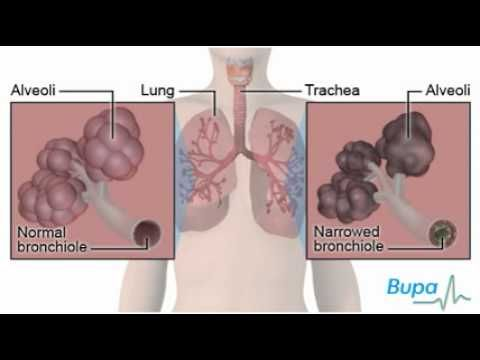 Smoking is the main cause of lung cancer. Watch our video here to find out the other effects of smoking on your body and read our factsheet here: http://www.bupa.co.uk/individuals/health-information/directory/s/effects-smoking?cmpid=soc-pinterest_bupahealth