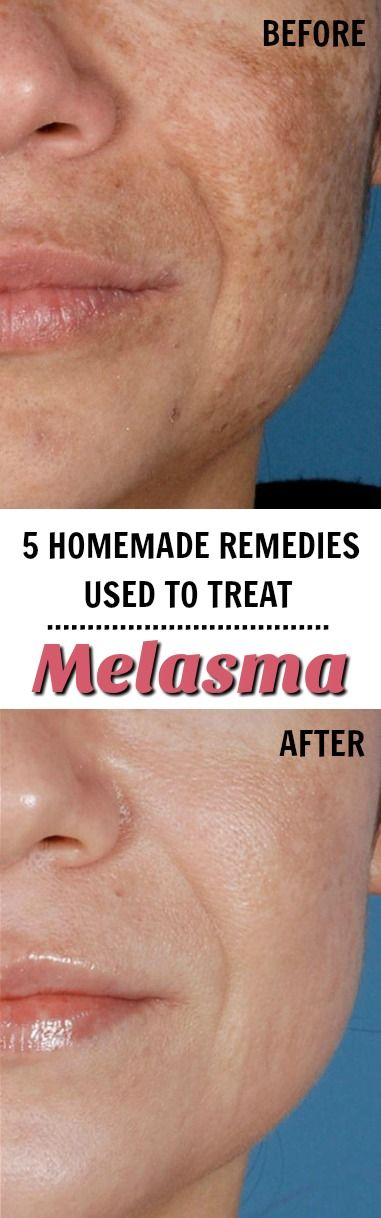 Learn how to treat melasma with these 5 super easy homemade remedies!