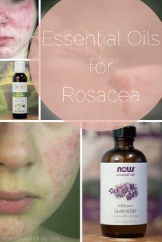 Essential oils for rosacea