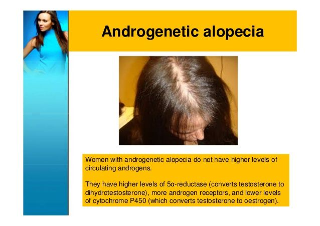 Androgenetic alopecia in Women ...scary because this type of hair probably will never grow back