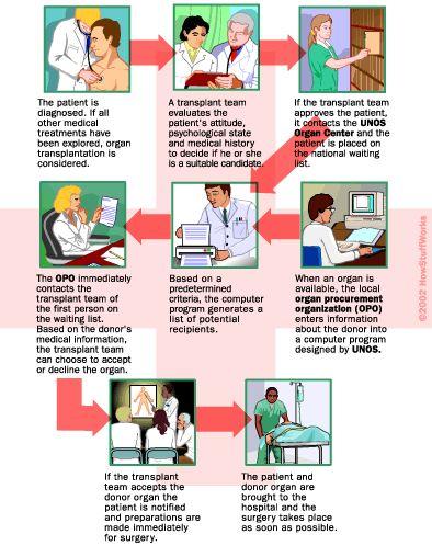 How Organ Transplants Work    by Tom Harris