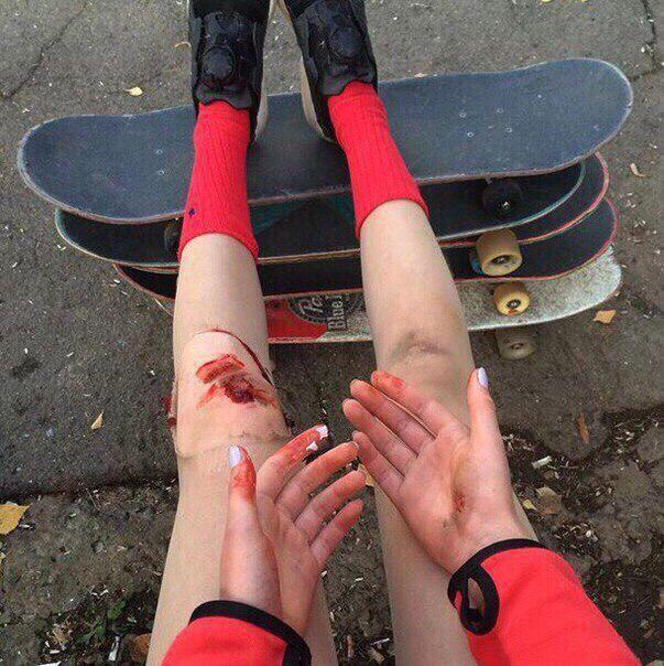Ноги + раны + девушка + красные носки + стиль + скейт + кровь