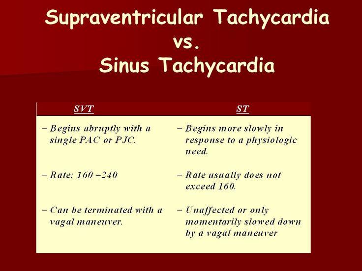 Supraventricular Tachycardia vs. Sinus Tachycardia