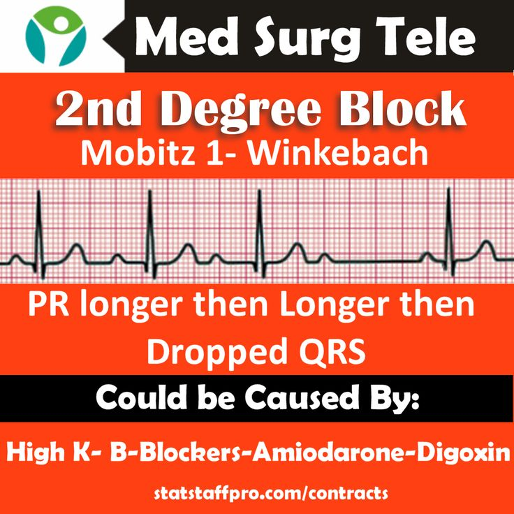 See More Telemetry Second Degree Heart Block Mobitz 1