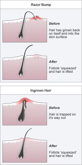 Ingrown Hair