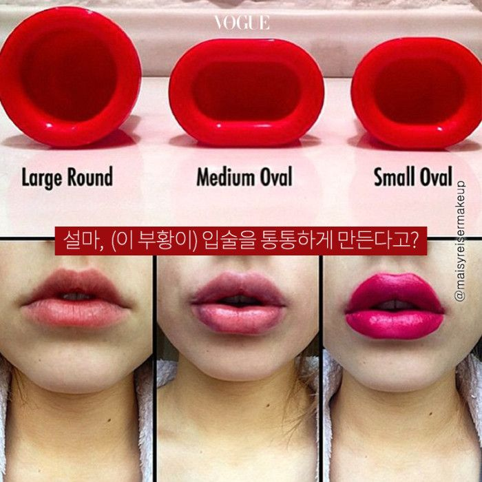 latest lip plumping fad: shaped suction cups (used for 30secs: effects apparently last for hours)