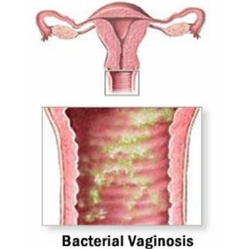 Vaginal Discharge: Common Reasons For Female Discharge