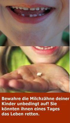 Bewahre die Milchzähne deiner Kinder unbedingt au…