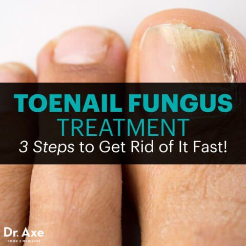 Toenail fungus treatment - Dr. Axe