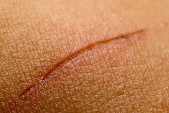 #Cómo curar las heridas sin dejar cicatrices - LaCronica.com: LaCronica.com Cómo curar las heridas sin dejar cicatrices LaCronica.com Si…