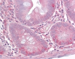 TLR1 IMG-5012 IHC staining in human small intestine.