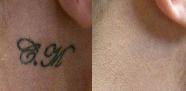 Veilige en effectieve verwijdering van tatoeages en MHP of vervaging voor een cover-up tattoo via laser behandelingen met geavanceerde medische multi-golflengte Quanta System Q-Plus C laserapparatuur van het internationaal vermaarde technologiebedrijf Quanta System.   Beauty Care Nederland