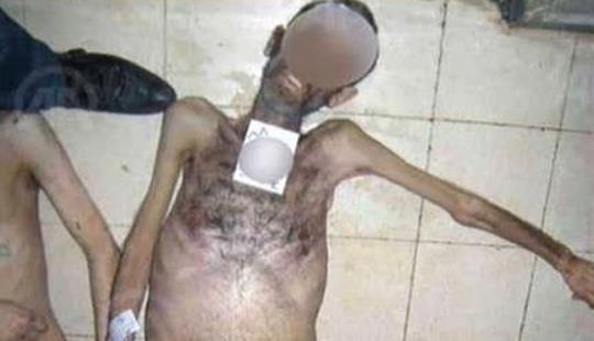 Siria:Imágenes impactantes de la tortura en las prisiones Assad | Adribosch's Blog