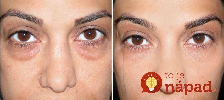 Tmavé kruhy pod očami? Na ich rýchle odstránenie potrebujete len 1 vec! Viac sa dočítate na http://tojenapad.dobrenoviny.sk/tmave-kruhy-pod-ocami-na-ich-rychle-odstranenie-potrebujete-len-1-vec/  #circles #face #skin #beauty #eyes #tojenapad #healthandcare #healthandbeauty #beforeafter