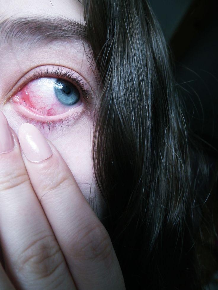 Aesthetic, pale, blue eye, eyes, niebieskie oczy, blood