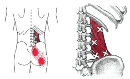 """what you need to know about """"muscle knots"""" or trigger"""