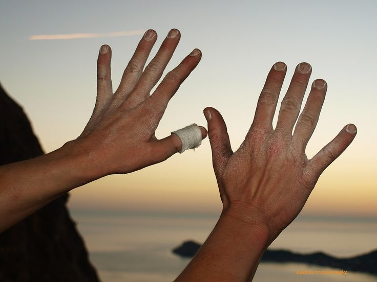 The North Face Kalymnos Climbing Festival 2013, climber's hands