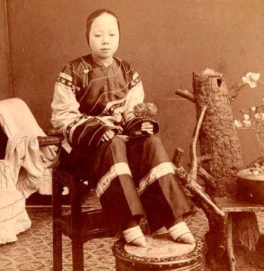 Foot binding started at the age of 5. For 10 years the girl would wear the strips all day and night. As the girls grew older, the strips were getting tighter, which slowly changed the shape of their feet. Their 4 minor toes would slowly bend around until they sat under the sole of the foot. When the women turned 15 there feet would've transformed into, what they call, 'lilies'.