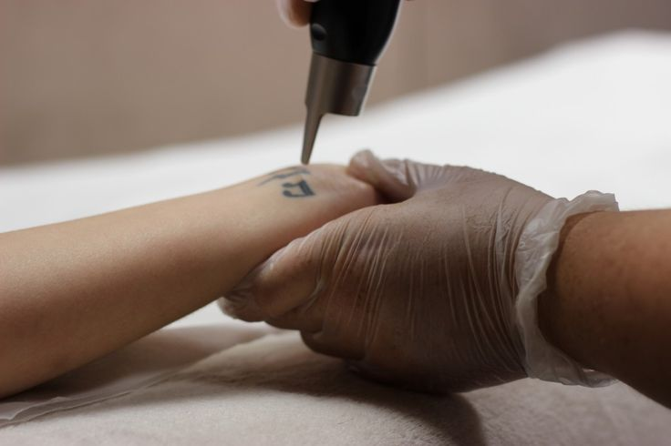 Tattoo Removal - PicoSure laser tattoo removal ~ fast  affordable - Quick and Easy Natural Methods & Secrets to Eliminating the Unwanted Tattoo That You've Been Regretting for a Long Time