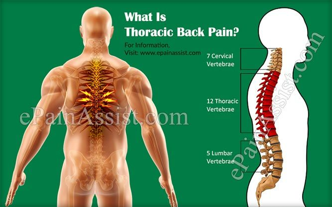 What Is Thoracic Back Pain Or Middle Back Pain?