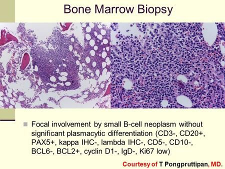 Bone Marrow Biopsy Focal involvement by small B-cell neoplasm without significant plasmacytic differentiation (CD3-, CD20+, PAX5+, kappa IHC-, lambda IHC-,