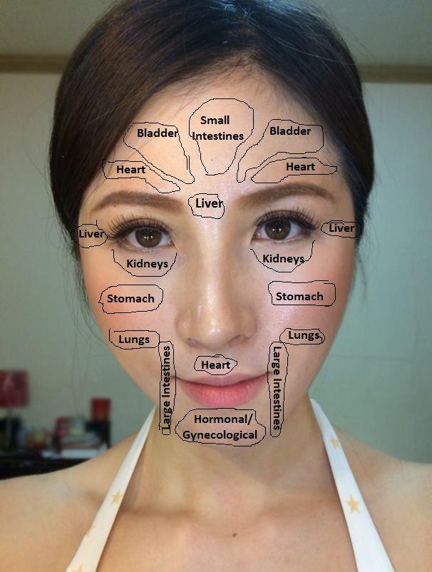 pimple chart: Best 25 face map acne ideas on pinterest facial acne map