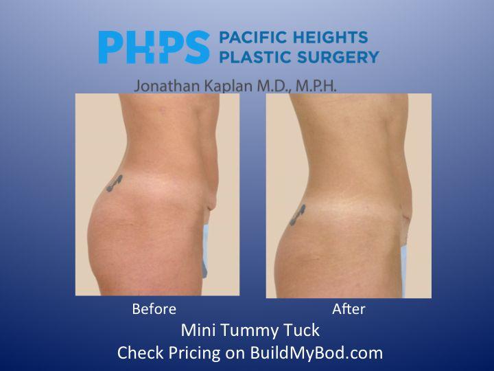 Full vs mini tummy tuck necklift and facelift mini