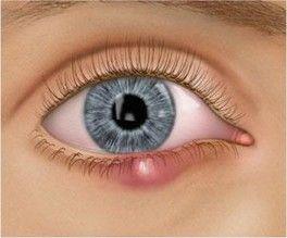 Meibomian Cyst (chalazion) | Eye Doctors, Auckland