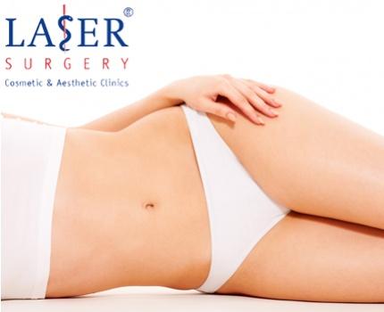 €1.399 ipv €2.999 – Een Lipostyle Liposuctie van je buik- en maagzone bij Laser Surgery