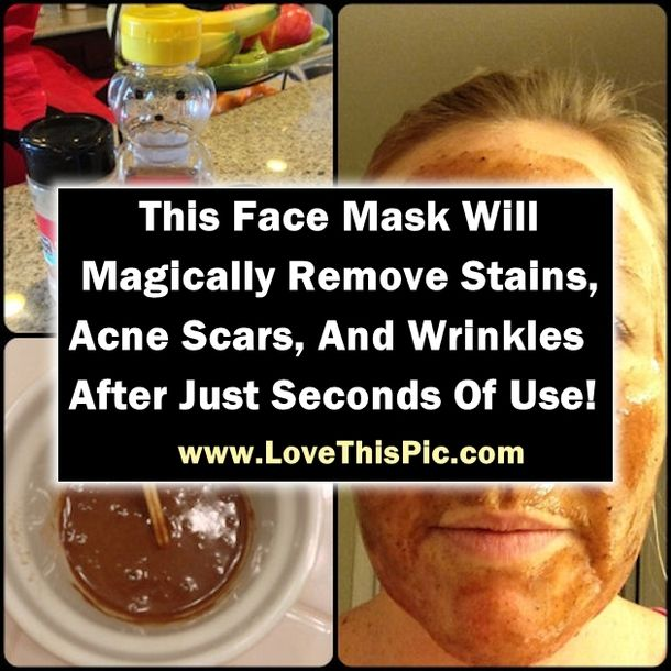 This Face Mask Will Magically Remove Stains, Acne Scars, And Wrinkles After Just Seconds Of Use! beauty diy diy ideas health healthy living remedies remedy skin care life hacks beauty tips good to know viral