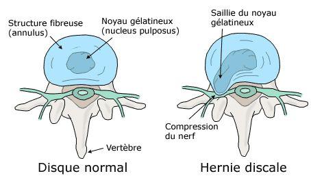 hernie-discale