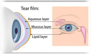 Dr Somdutt Prasad: Dry Eyes: Causes, Symptoms & Treatment by Dr Somdutt Prasad