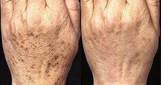 Usualmente, las manchas que aparecen con la edad, aparecen sobre los hombros, la cara, las manos y otras partes de a piel, especialmente aquellas que se exponen al sol. Anuncio Principalmente, las manchas por edad aparecen en adultos sobre 40 años, pero algunas veces personas más jóvenes son afectadas también, de acuerdo con la Clínica […]