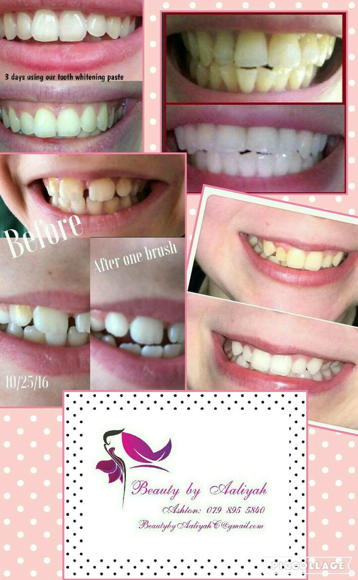 Amazing whitening toothpaste!  Visit my page on Facebook Beauty by Aaliyah to order yours today!
